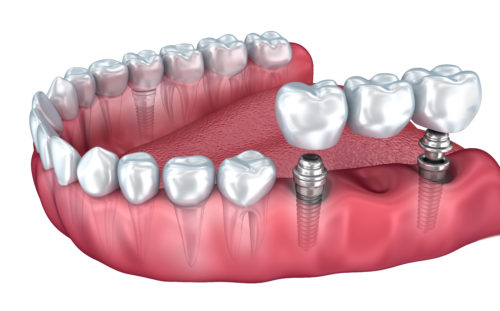 Lower implant retained bridge