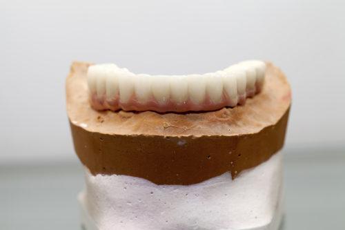 Lower hybrid denture