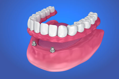 Overdenture on ball attachments
