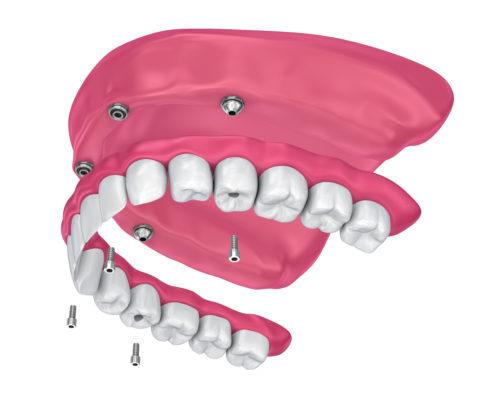 Upper Hybrid Denture