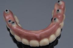 Full Upper hybrid denture