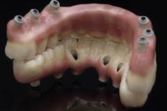 Upper and Lower Hybrid Dentures