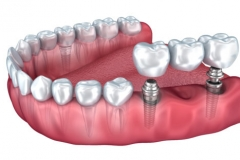Lower implant retained bridge