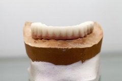 Lower hybrid denture